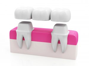 dental bridge ormskirk