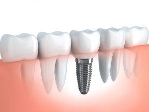 benefits of dental implant